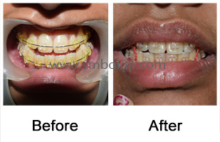 Long lower jaw corrected surgically enhancing the facial profile