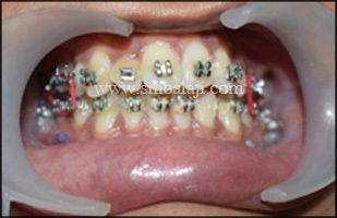 Improved bite following surgery giving enhanced appearance