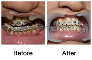 deviated lower jaw – facial asymmetry Before - After