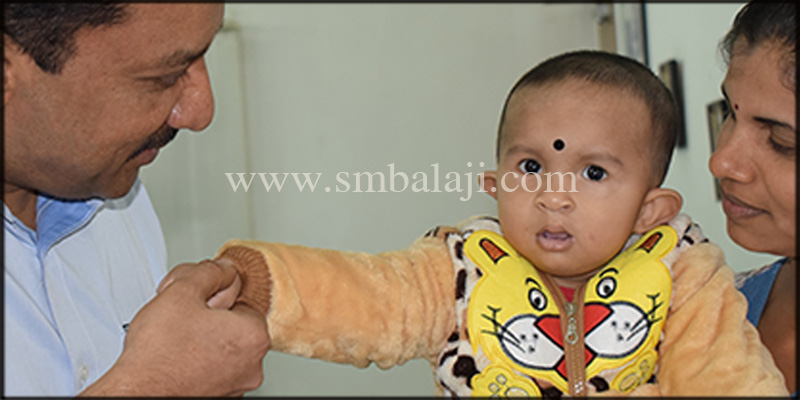 Following 9 months after cleft lip repair surgery showing enhanced appearance of the boy