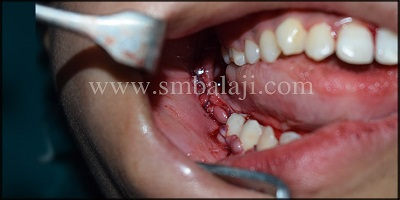 Immediately after suturing Intraoral view