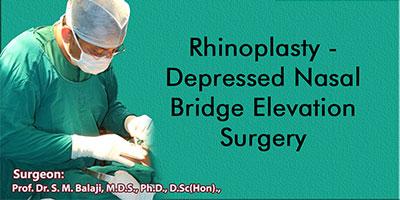 Rhinoplasty - Depressed Nasal Bridge Elevation Surgery