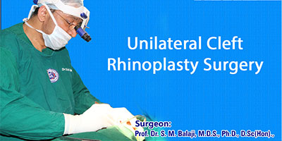 Unilateral Cleft Rhinoplasty Surgery