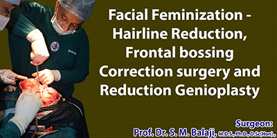Facial Feminization - Hairline Reduction, Frontal bossing Correction surgery