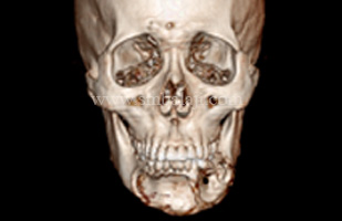 3DCT showing extensive loss of buccal cortex