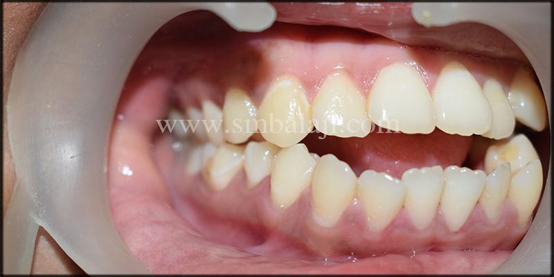 Pre-operative intra oral view showing anterior open bite (non-occlusion)