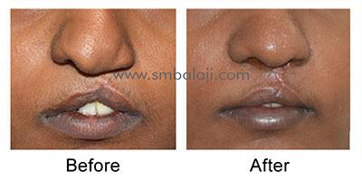 Depressed nose correction by closed rhinoplasty
