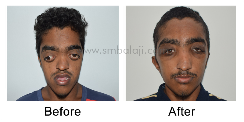 Pre and postoperative straight view
