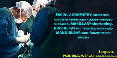 Facial asymmetry correction-- condylar hyperplasia already operated but failed, maxillary shortening, buccal fat pad transfer, malar and mandibular body augmentation surgery