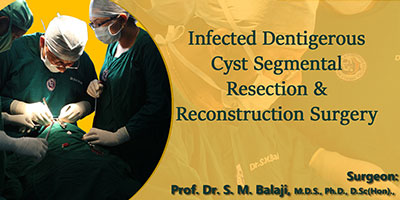Infected dentigerous cyst-Segmental Resection & Reconstruction Surgery