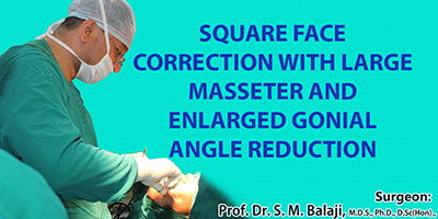 Square face correction with large masseter and enlarged gonial angle reduction