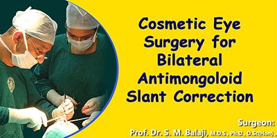 Cosmetic Eye Surgery, Facial cosmetic surgery India