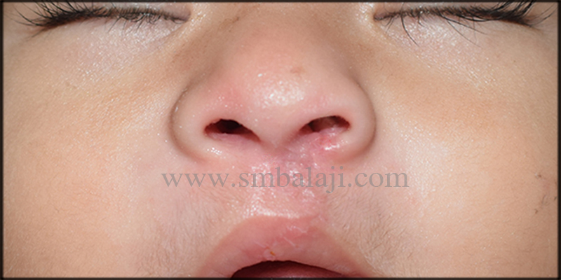 Post-operative view following 7 days after surgery showing negligible scar formation with well defined nostrils- Straight view