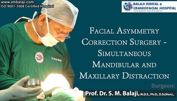 Facial Asymmetry Correction Surgery Chennai