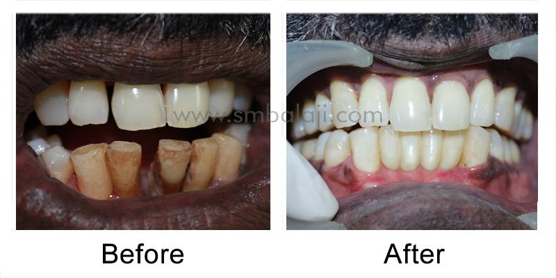 Immediate Dental Implants India