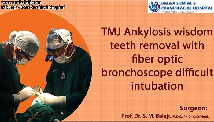 TMJ Ankylosis surgery india