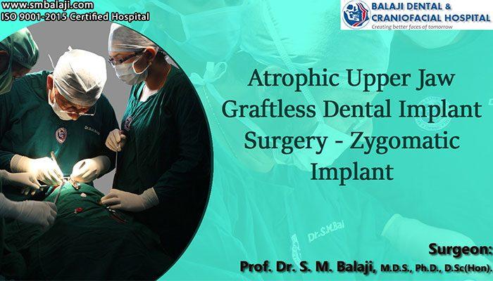 dental implant surgery Chennai India