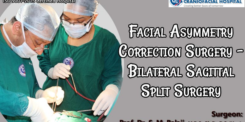 Facial Asymmetry Correction Surgery - Bilateral Sagittal Split Surgery