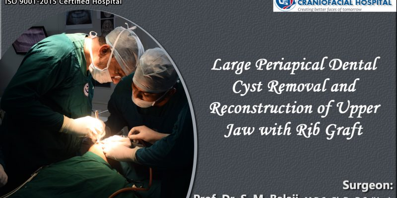 Large Periapical Dental Cyst Removal and Reconstruction of Upper Jaw with Rib Graft