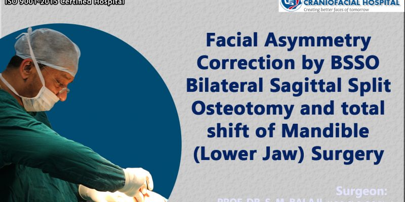 Facial Asymmetry Correction by BSSO Bilateral Sagittal Split Osteotomy and total shift of Mandible (Lower Jaw) Surgery