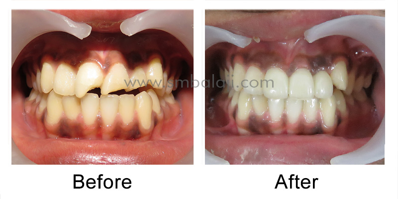 Patient before and after changeover