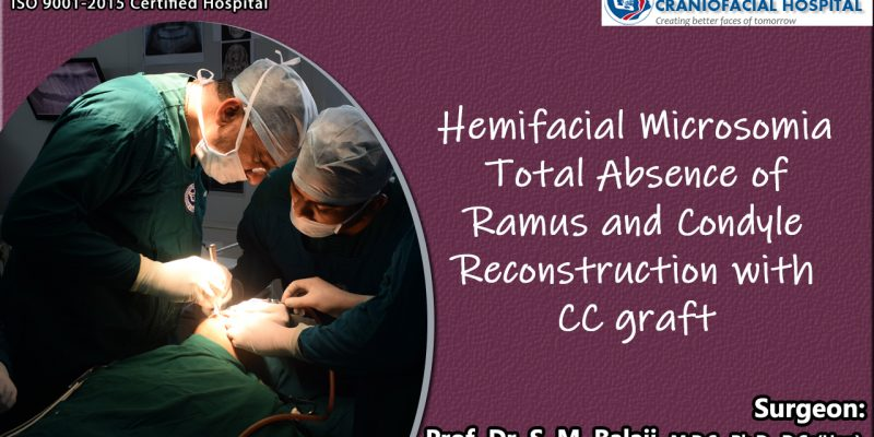 Hemifacial Microsomia total Absence of Ramus and Condyle Reconstruction with costochondral graft