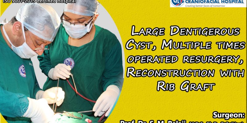 Large Dentigerous Cyst, Multiple times operated Resurgery, Reconstruction with Rib Graft