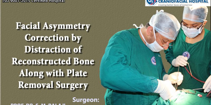 Facial Asymmetry Correction by distraction of reconstructed bone along with Plate removal Surgery