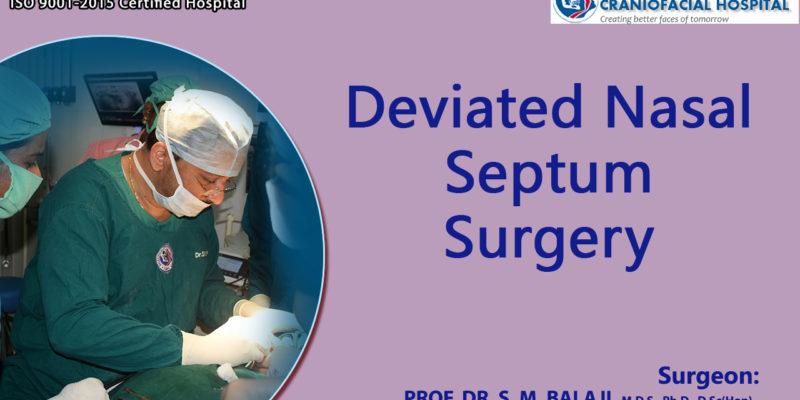 Deviated Nasal Septum Surgery