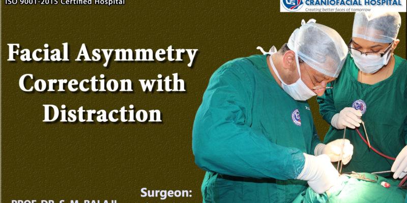 Facial Asymmetry Correction with distraction