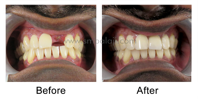 Patient before and after treatment