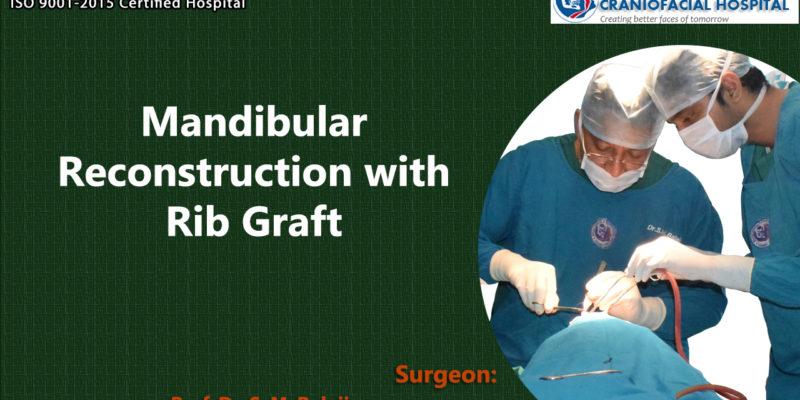 Mandibular Reconstruction with Rib Graft