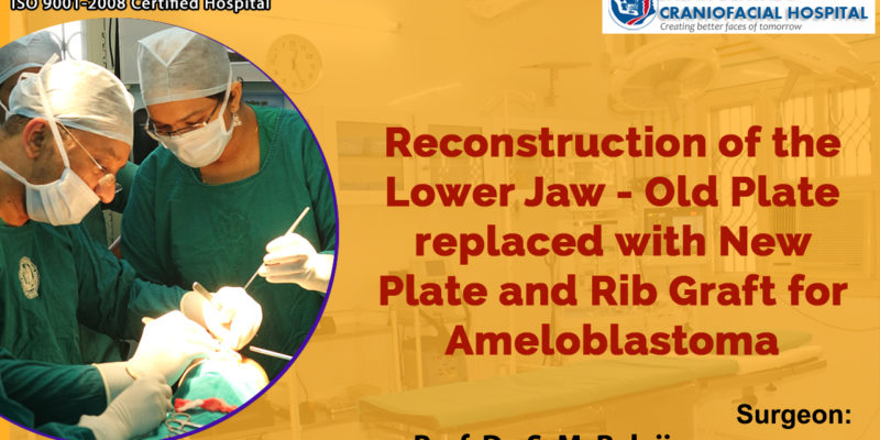 Reconstruction of the lower jaw - old plate replaced with new plate and rib graft for ameloblastoma
