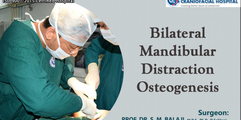 Bilateral Mandibular Distraction Osteogenesis