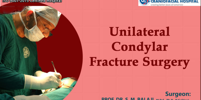 Unilateral Condylar Fracture Surgery