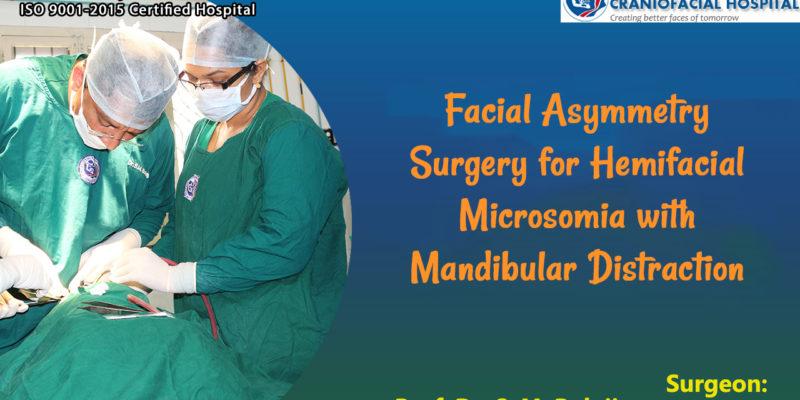 Facial Asymmetry Surgery for Hemifacial Microsomia with Mandibular Distraction