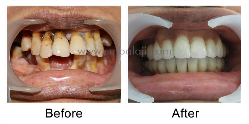 Patients oral condition before and after