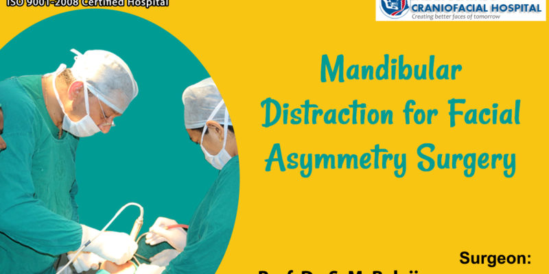 Mandibular Distraction for Facial Asymmetry Surgery