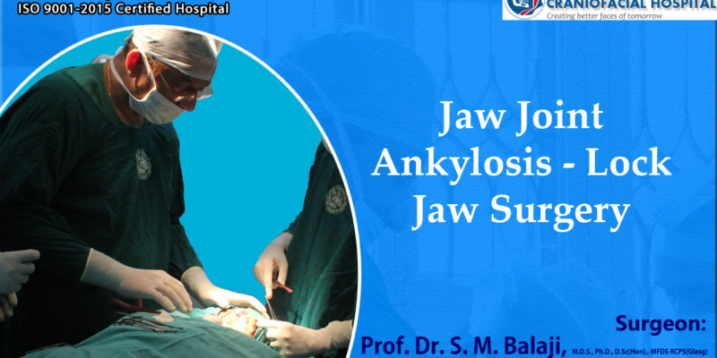 Jaw Joint Ankylosis - Lock Jaw Surgery