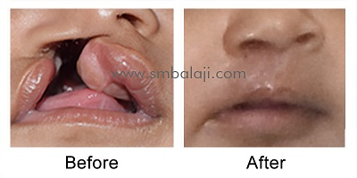 Unilateral Cleft Lip & Palate Surgery Before After Surgery