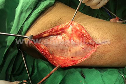 Tensor fascia lata graft obtained from the vastus lateralis muscle