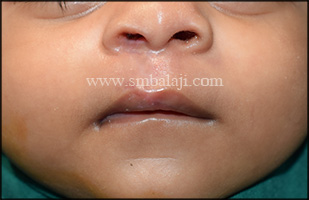 Immediately after suture removal following seven days of surgery showing enhanced appearance