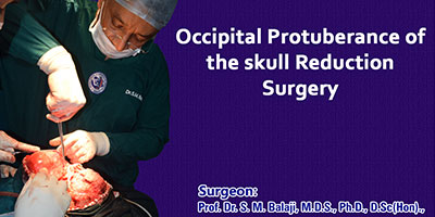 Occipital Protuberance of the skull Reduction Surgery