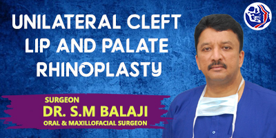 Unilateral cleft lip and palate Rhinoplasty