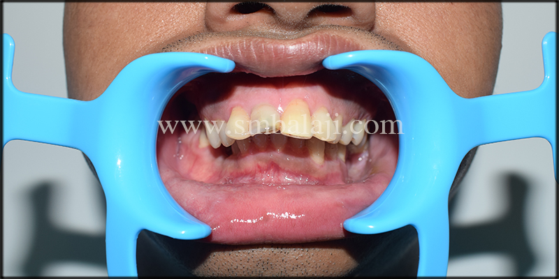Pre-operative occlusal view showing increased deep bite