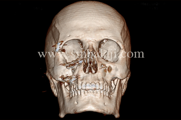 3DCT scan showing depressed right zygoma