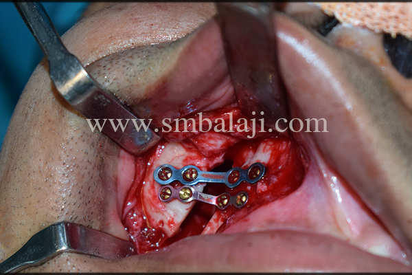 Right zygoma fracture elevated and fixed using Ti plates and screws