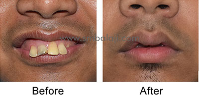 Profile enhancement by correction of upper jaw using AMO