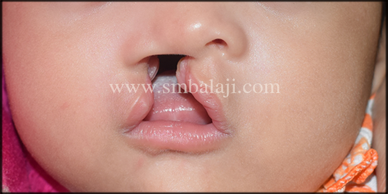 A 3-month-old baby born with unilateral cleft lip and palate