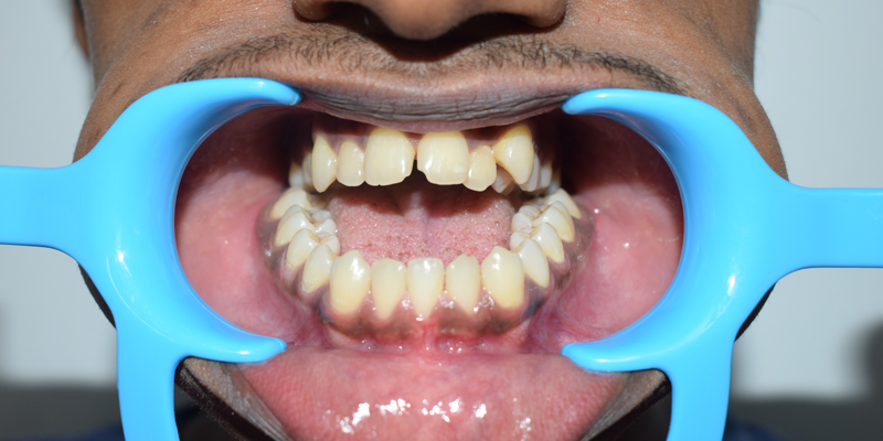 Preoperative occlusal view